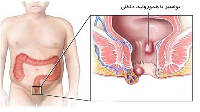 بواسیر یا هموروئید داخلی